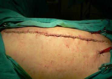 Plastia abdominal