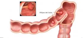 Colonoscopía