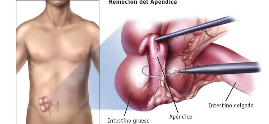 Apendectomía